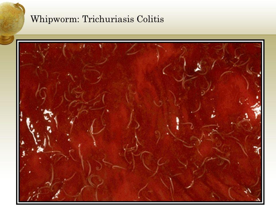 Whipworm: Trichuriasis Colitis