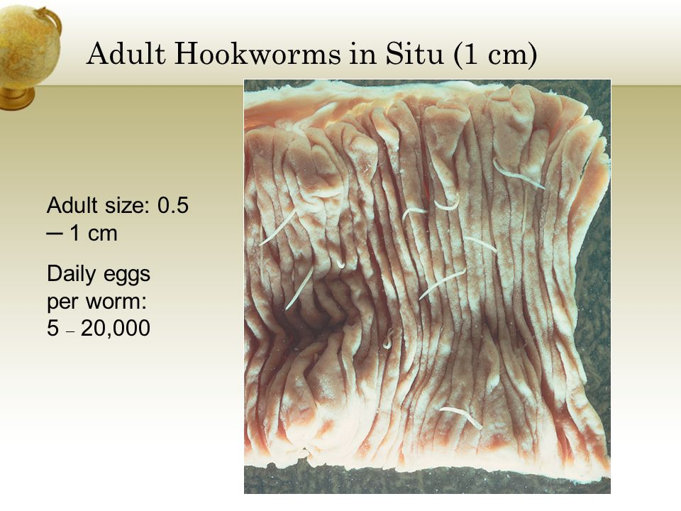 Adult Hookworms in Situ (1 cm) Adult size: 0.5 1 cm Daily eggs per worm: 5 20,000