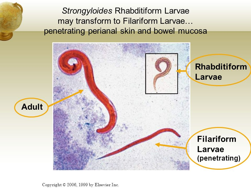 Copyright © 2006, 1999 by Elsevier Inc. Strongyloides Rhabditiform Larvae may transform to Filariform Larvae… penetrating perianal skin and bowel muco
