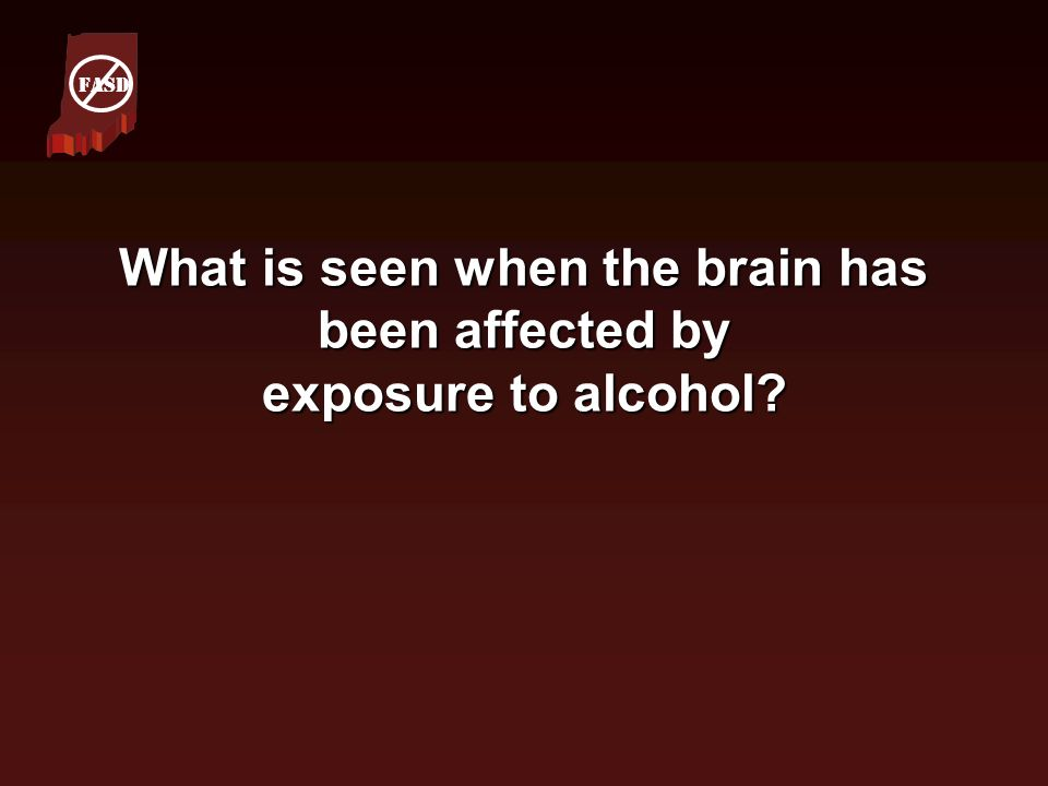 What is seen when the brain has been affected by exposure to alcohol? FASD