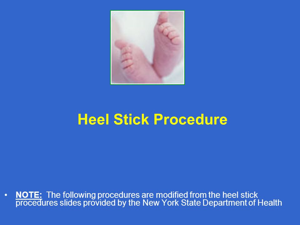 Heel Stick Procedure NOTE: The following procedures are modified from the heel stick procedures slides provided by the New York State Department of He