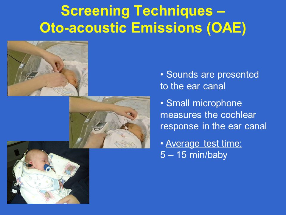 Screening Techniques – Oto-acoustic Emissions (OAE) Sounds are presented to the ear canal Small microphone measures the cochlear response in the ear c