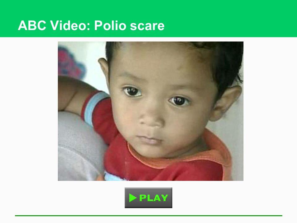 ABC Video: Polio scare