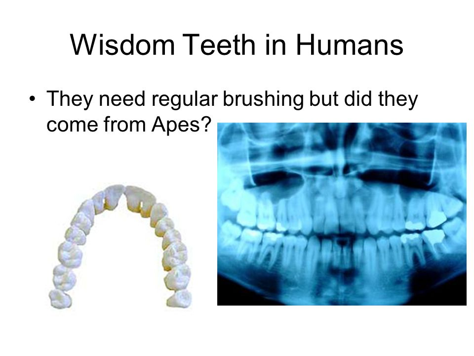Wisdom Teeth in Humans They need regular brushing but did they come from Apes?