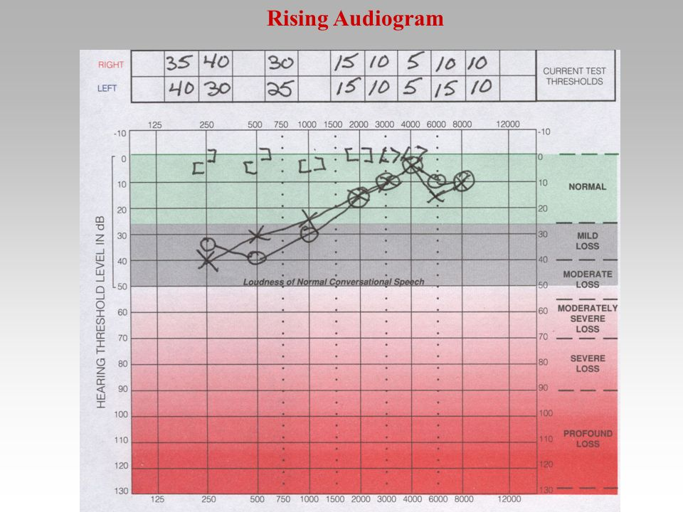 Rising Audiogram