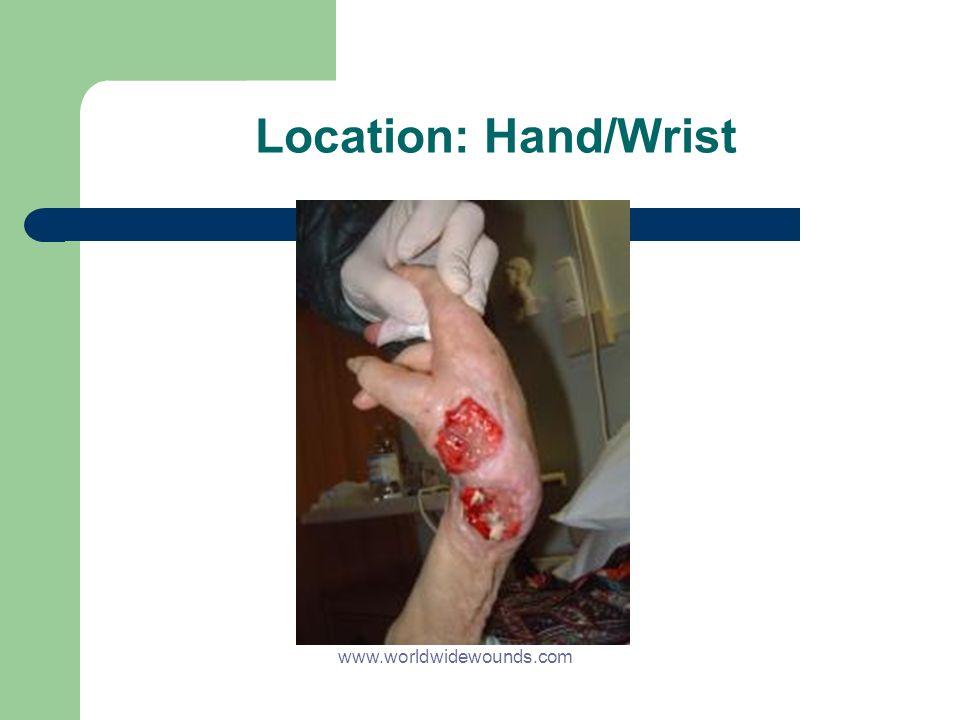 Location: Hand/Wrist www.worldwidewounds.com