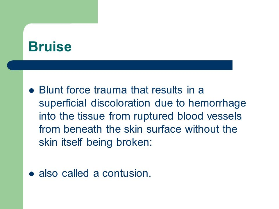 Bruise Blunt force trauma that results in a superficial discoloration due to hemorrhage into the tissue from ruptured blood vessels from beneath the s