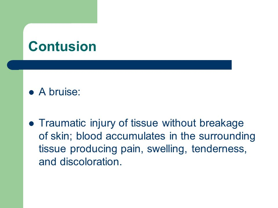 Contusion A bruise: Traumatic injury of tissue without breakage of skin; blood accumulates in the surrounding tissue producing pain, swelling, tendern