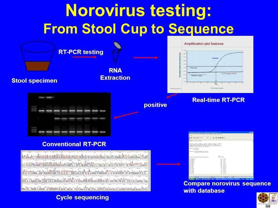Real-time RT-PCR RNA Extraction Norovirus testing: From Stool Cup to Sequence positive Cycle sequencing Conventional RT-PCR Compare norovirus sequence