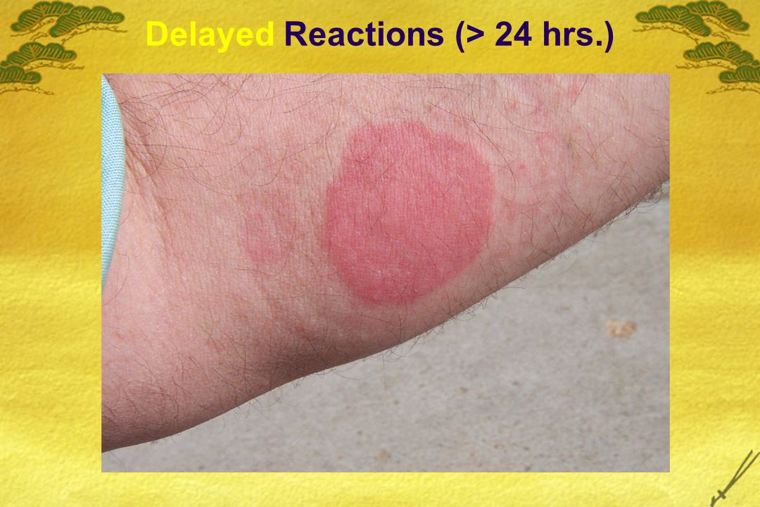 Delayed Reactions (> 24 hrs.)