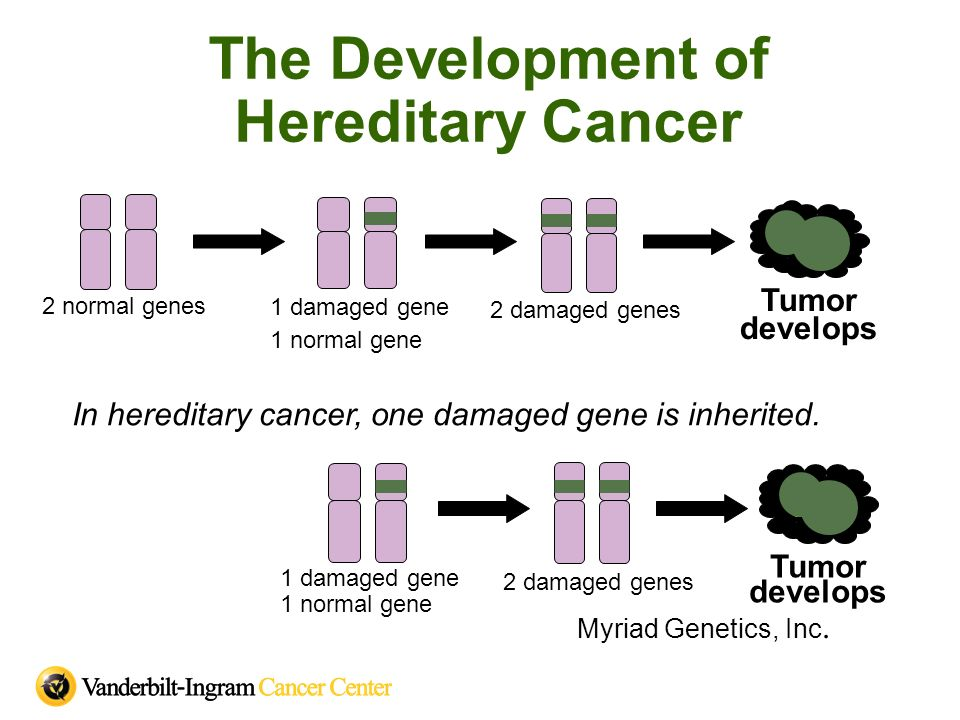 The Development of Hereditary Cancer 1 damaged gene 1 normal gene Tumor develops 2 normal genes 2 damaged genes In hereditary cancer, one damaged gene