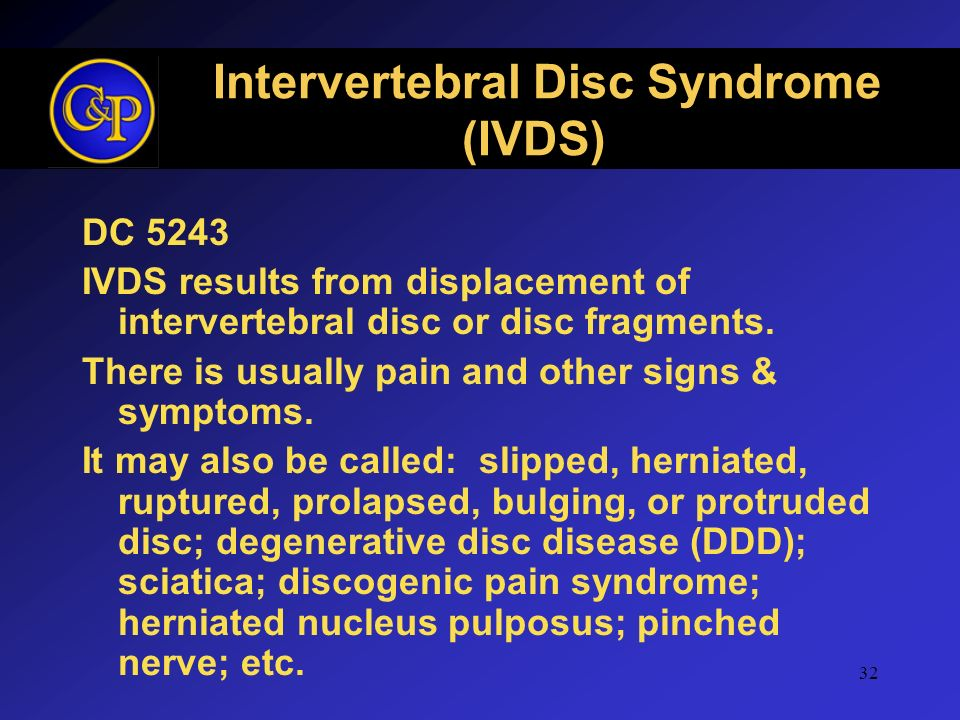 32 Intervertebral Disc Syndrome (IVDS) DC 5243 IVDS results from displacement of intervertebral disc or disc fragments. There is usually pain and othe