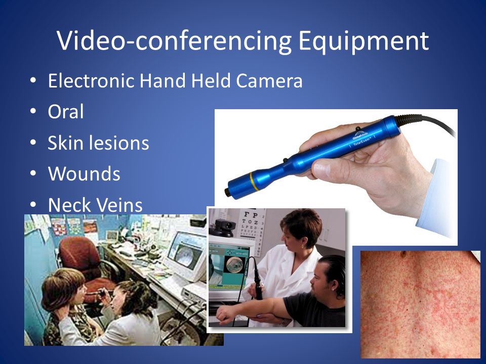 Video-conferencing Equipment Electronic Hand Held Camera Oral Skin lesions Wounds Neck Veins