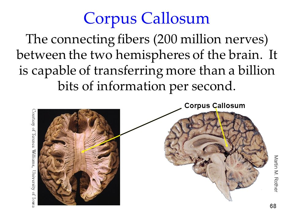 68 Corpus Callosum The connecting fibers (200 million nerves) between the two hemispheres of the brain. It is capable of transferring more than a bill