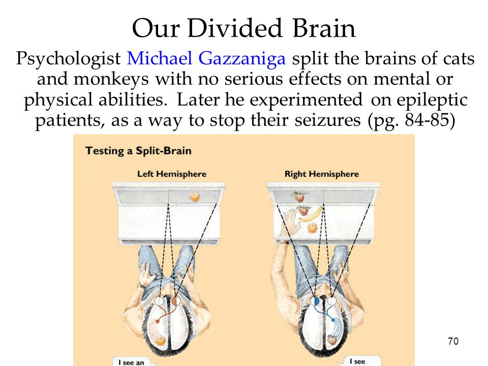 70 Our Divided Brain Psychologist Michael Gazzaniga split the brains of cats and monkeys with no serious effects on mental or physical abilities. Late