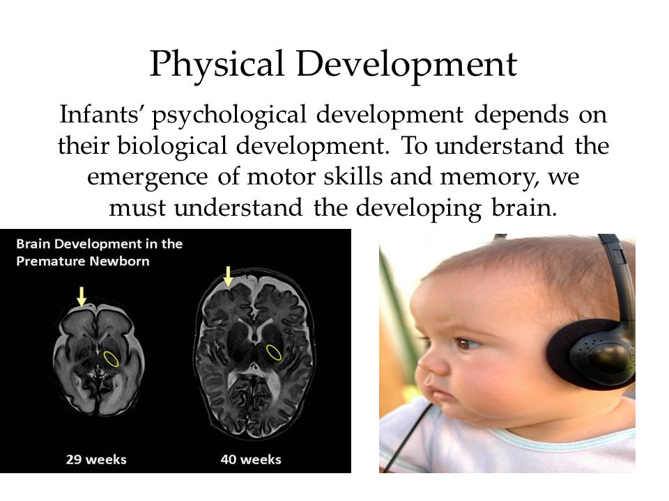 16 Developing Brain The developing brain overproduces neurons.