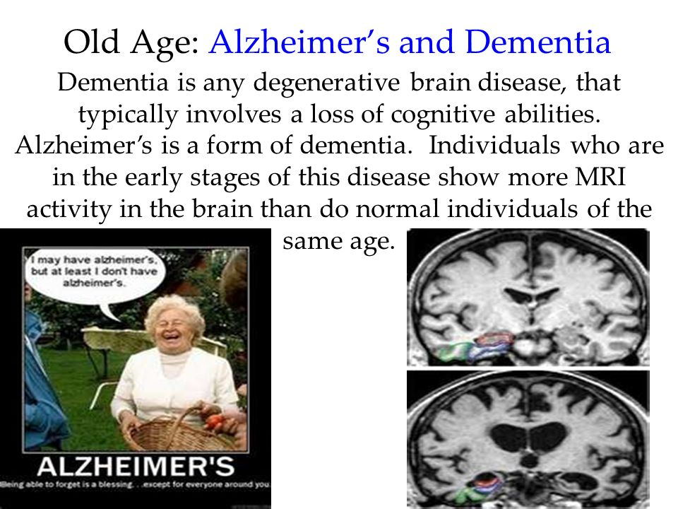 73 Old Age: Alzheimers and Dementia Dementia is any degenerative brain disease, that typically involves a loss of cognitive abilities. Alzheimers is a
