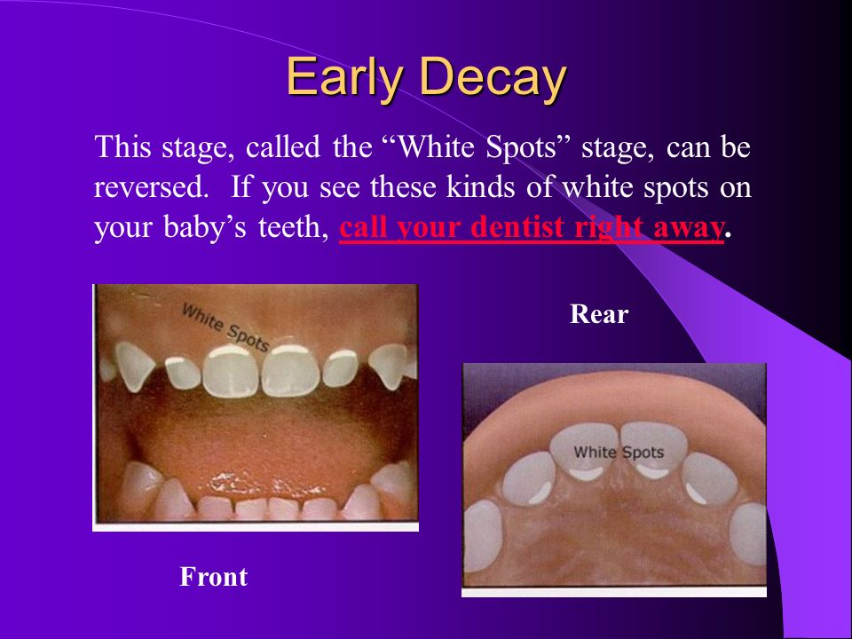 Healthy Teeth No Decay. Ask the dentist about fluoride needs. Front Rear