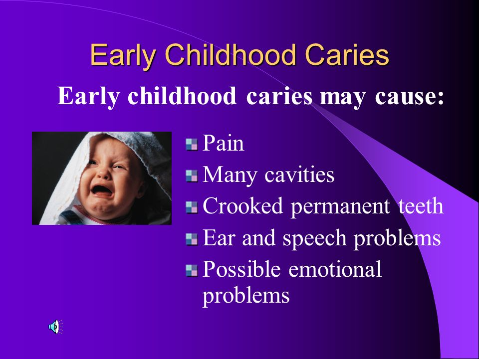 Early Childhood Caries It is a serious, painful dental disease affecting infants and children. It is tooth decay that results from improper feeding pr