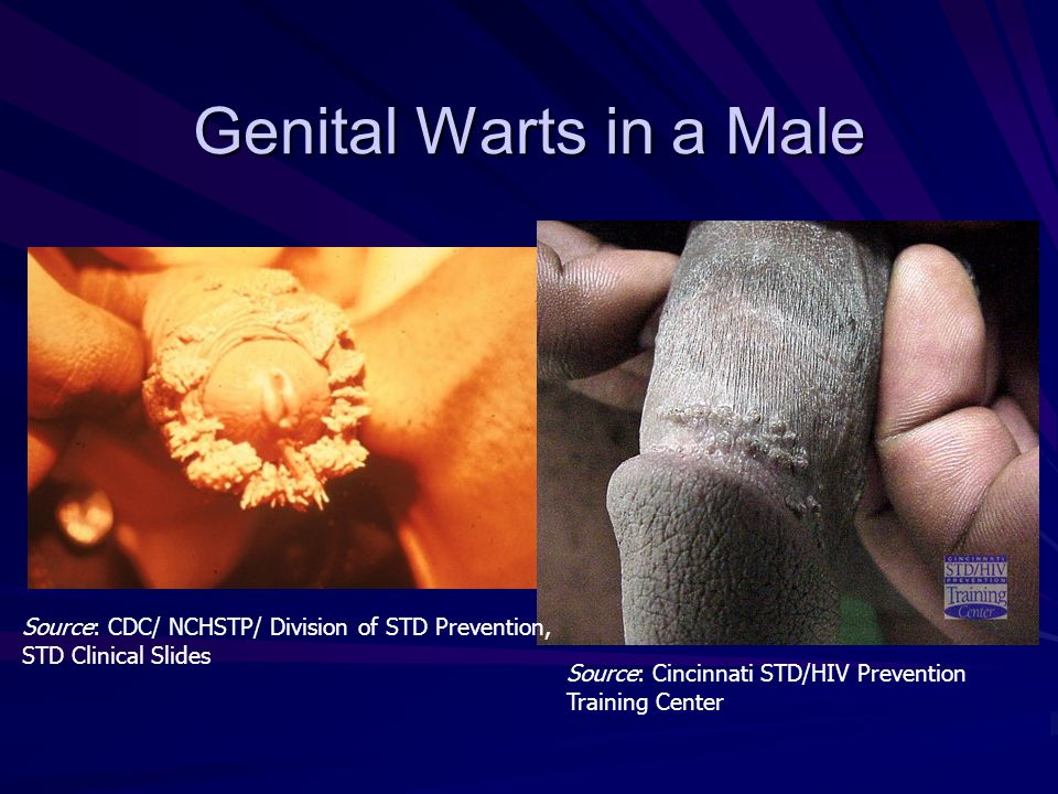 Genital Warts in a Male Source: Cincinnati STD/HIV Prevention Training Center Source: CDC/ NCHSTP/ Division of STD Prevention, STD Clinical Slides