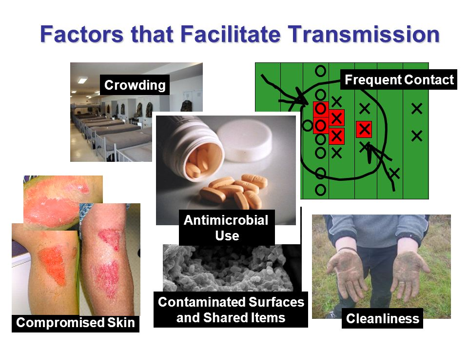 Contaminated Surfaces and Shared Items Frequent Contact Cleanliness Crowding Compromised Skin Factors that Facilitate Transmission Antimicrobial Use