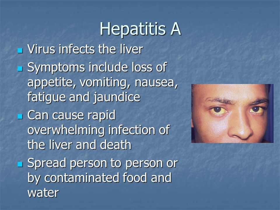 Hepatitis A Virus infects the liver Virus infects the liver Symptoms include loss of appetite, vomiting, nausea, fatigue and jaundice Symptoms include