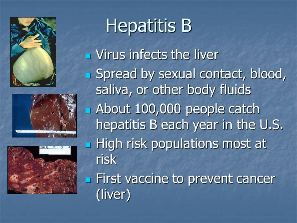 Hepatitis B Virus infects the liver Virus infects the liver Spread by sexual contact, blood, saliva, or other body fluids Spread by sexual contact, bl