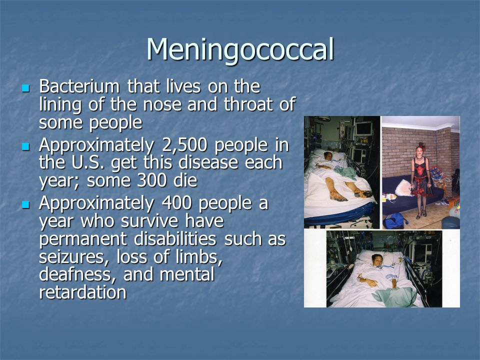 Meningococcal Bacterium that lives on the lining of the nose and throat of some people Bacterium that lives on the lining of the nose and throat of so
