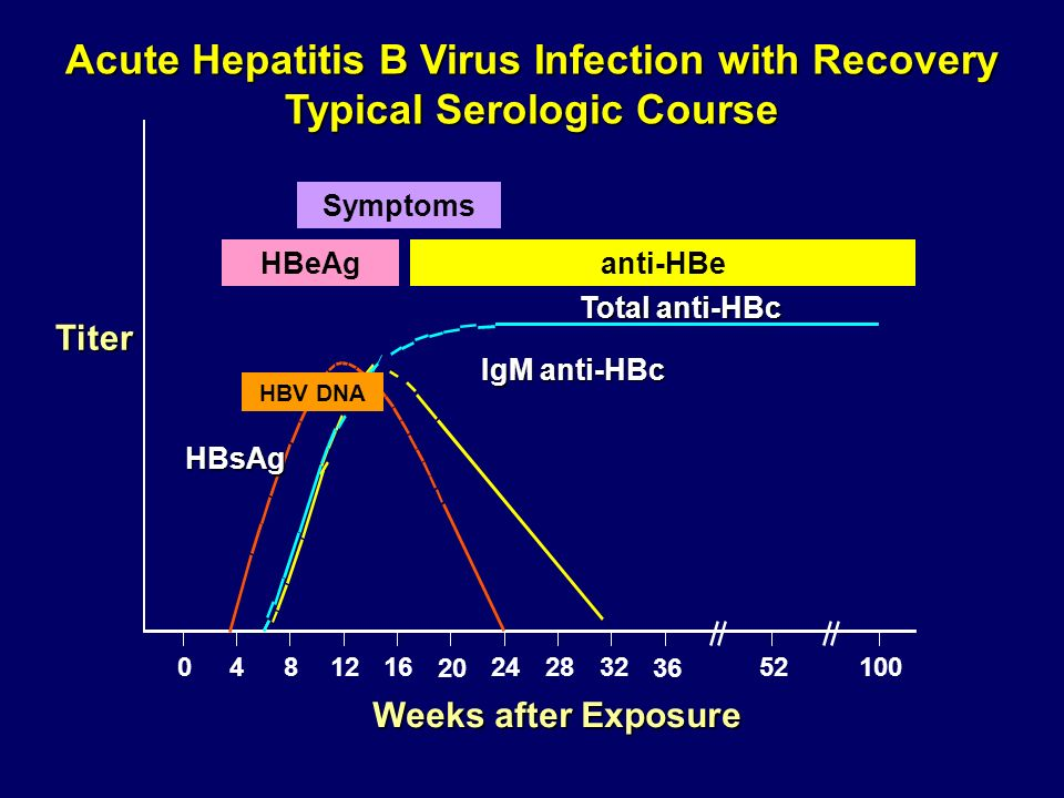 IgM anti-HBc HBsAg 0481216 20 242832 36 52100 Acute Hepatitis B Virus Infection with Recovery Typical Serologic Course Weeks after Exposure Titer HBeA
