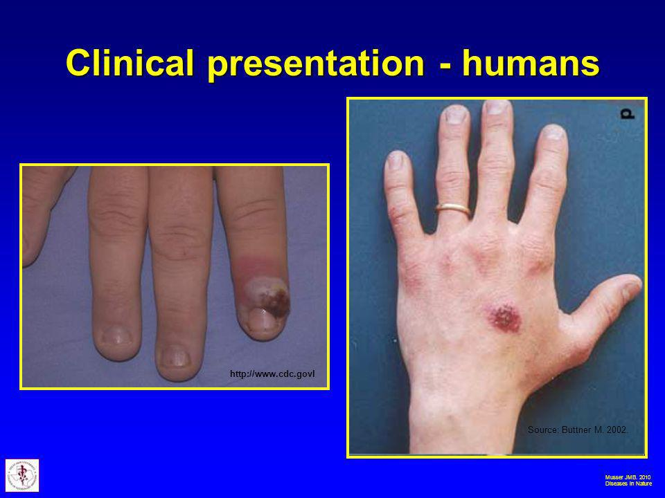 Musser JMB. 2010 Diseases in Nature Clinical presentation - humans http://www.cdc.govl Source: Buttner M. 2002.