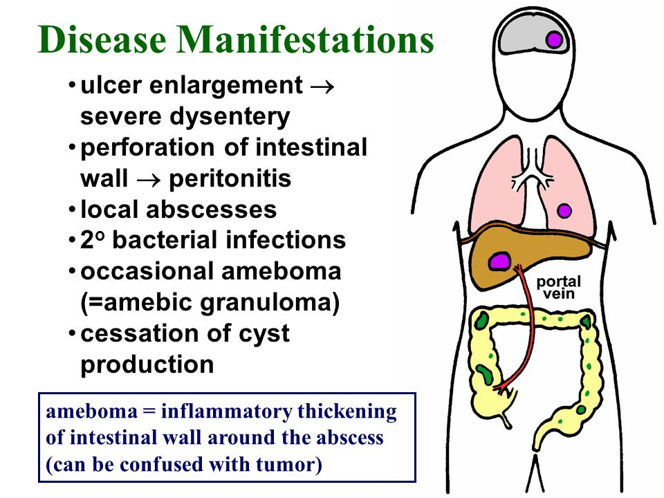 Disease Manifestations ulcer enlargement severe dysentery perforation of intestinal wall peritonitis local abscesses 2 o bacterial infections occasion