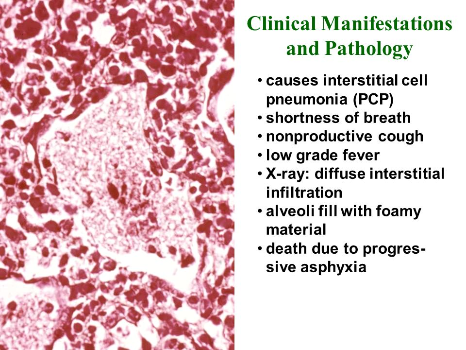 causes interstitial cell pneumonia (PCP) shortness of breath nonproductive cough low grade fever X-ray: diffuse interstitial infiltration alveoli fill with foamy material death due to progres- sive asphyxia Clinical Manifestations and Pathology