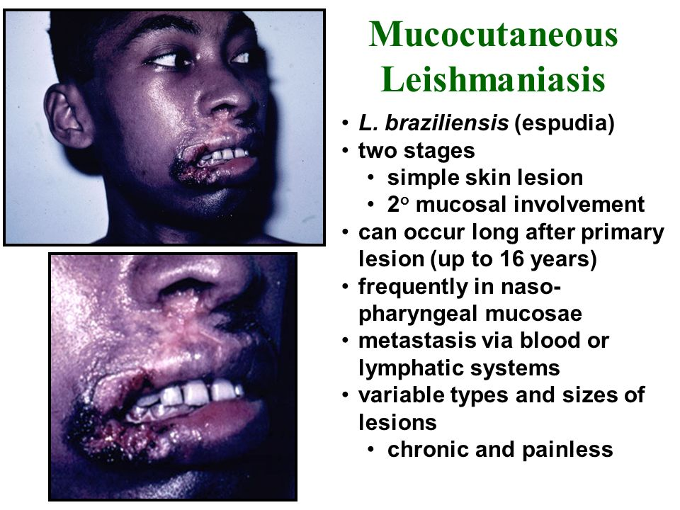 Mucocutaneous Leishmaniasis L. braziliensis (espudia) two stages simple skin lesion 2 o mucosal involvement can occur long after primary lesion (up to