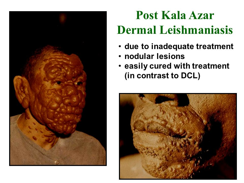 due to inadequate treatment nodular lesions easily cured with treatment (in contrast to DCL) Post Kala Azar Dermal Leishmaniasis