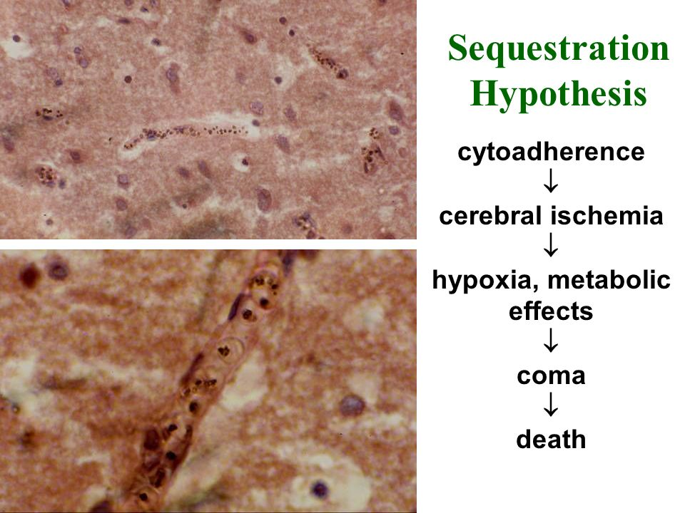 Sequestration Hypothesis cytoadherence cerebral ischemia hypoxia, metabolic effects coma death