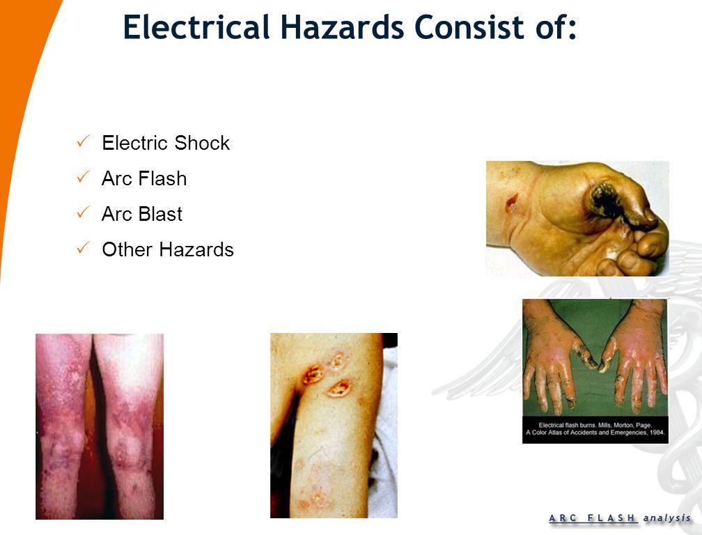 Electrical Hazards Consist of: Electric Shock Arc Flash Arc Blast Other Hazards