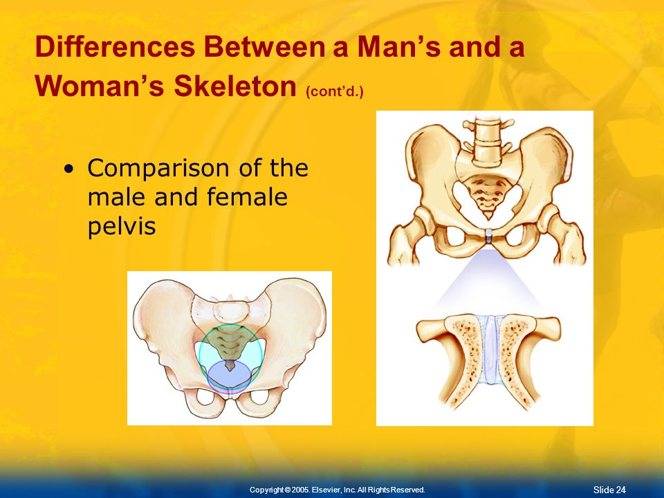Slide 23 Copyright © 2005. Elsevier, Inc. All Rights Reserved. Differences Between a Mans and a Womans Skeleton Sizemale skeleton generally larger Sha