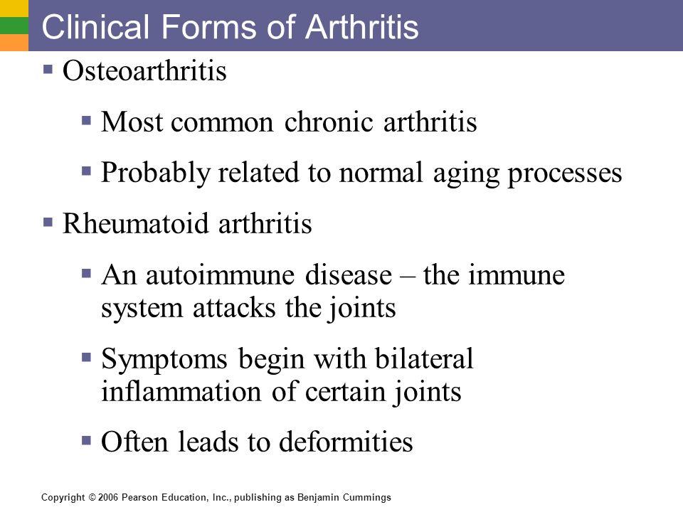Copyright © 2006 Pearson Education, Inc., publishing as Benjamin Cummings Clinical Forms of Arthritis Osteoarthritis Most common chronic arthritis Pro