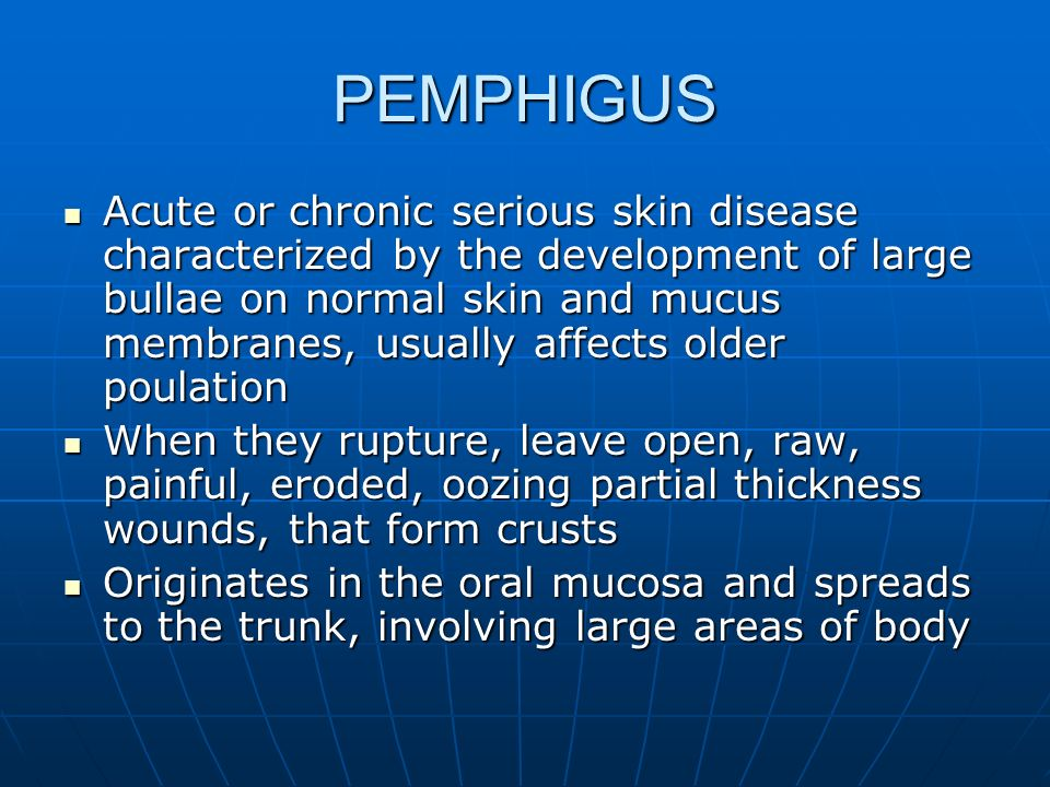PEMPHIGUS Acute or chronic serious skin disease characterized by the development of large bullae on normal skin and mucus membranes, usually affects o