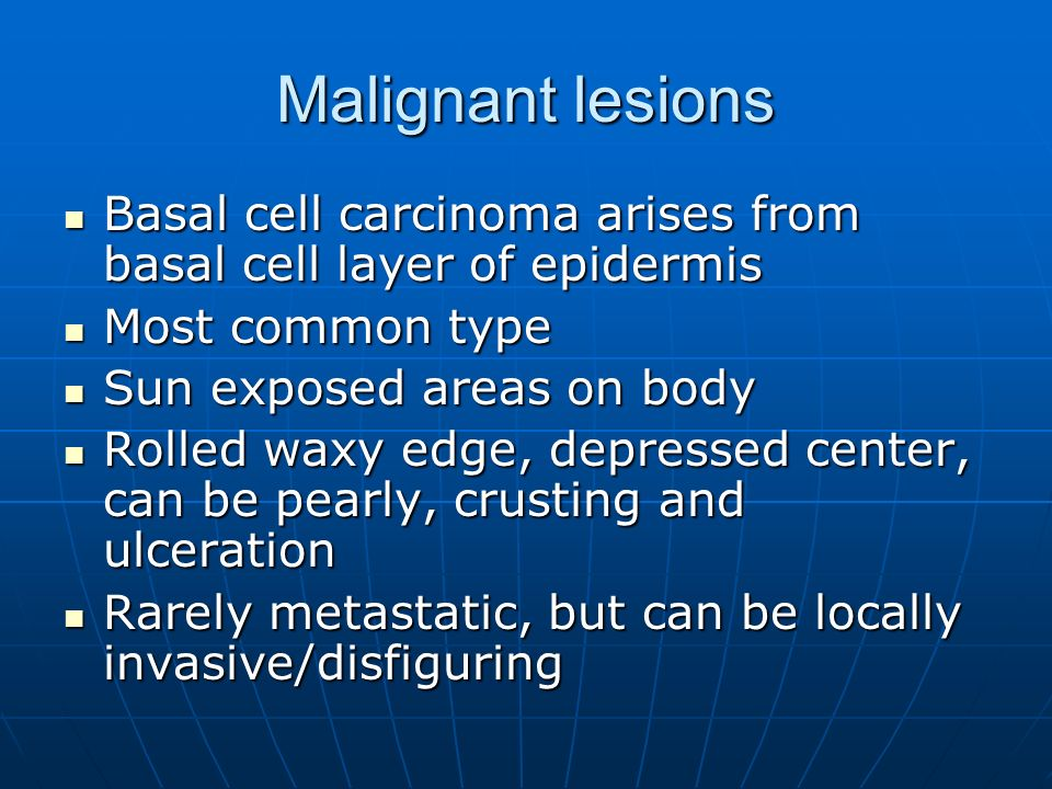 Malignant lesions Basal cell carcinoma arises from basal cell layer of epidermis Basal cell carcinoma arises from basal cell layer of epidermis Most c