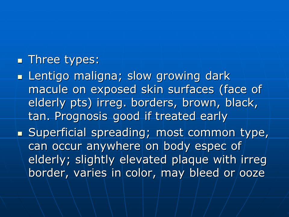 Three types: Three types: Lentigo maligna; slow growing dark macule on exposed skin surfaces (face of elderly pts) irreg. borders, brown, black, tan.
