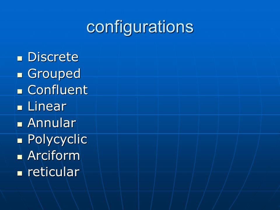 configurations Discrete Discrete Grouped Grouped Confluent Confluent Linear Linear Annular Annular Polycyclic Polycyclic Arciform Arciform reticular r