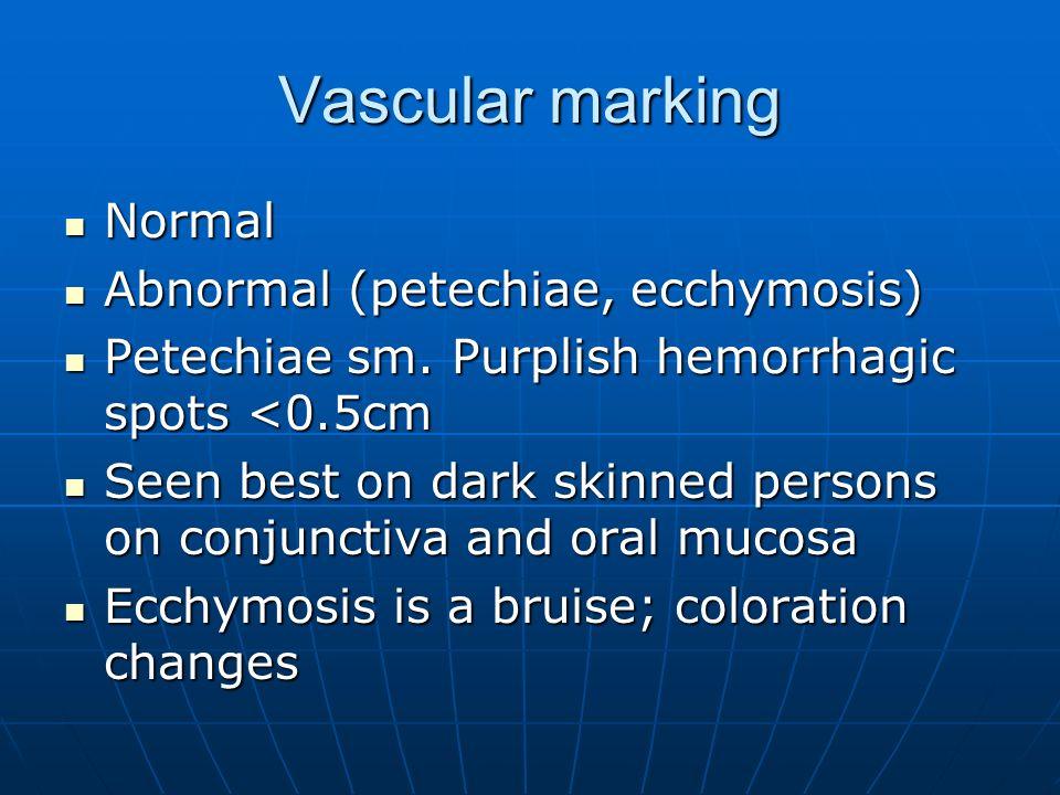 Vascular marking Normal Normal Abnormal (petechiae, ecchymosis) Abnormal (petechiae, ecchymosis) Petechiae sm. Purplish hemorrhagic spots <0.5cm Petec