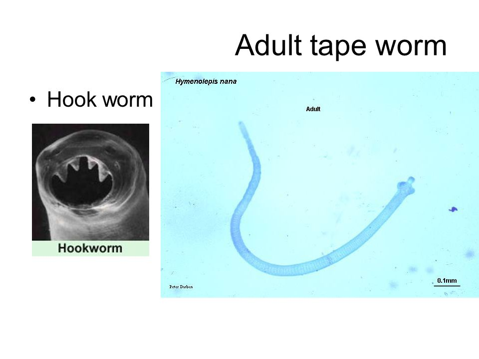 Adult tape worm Hook worm