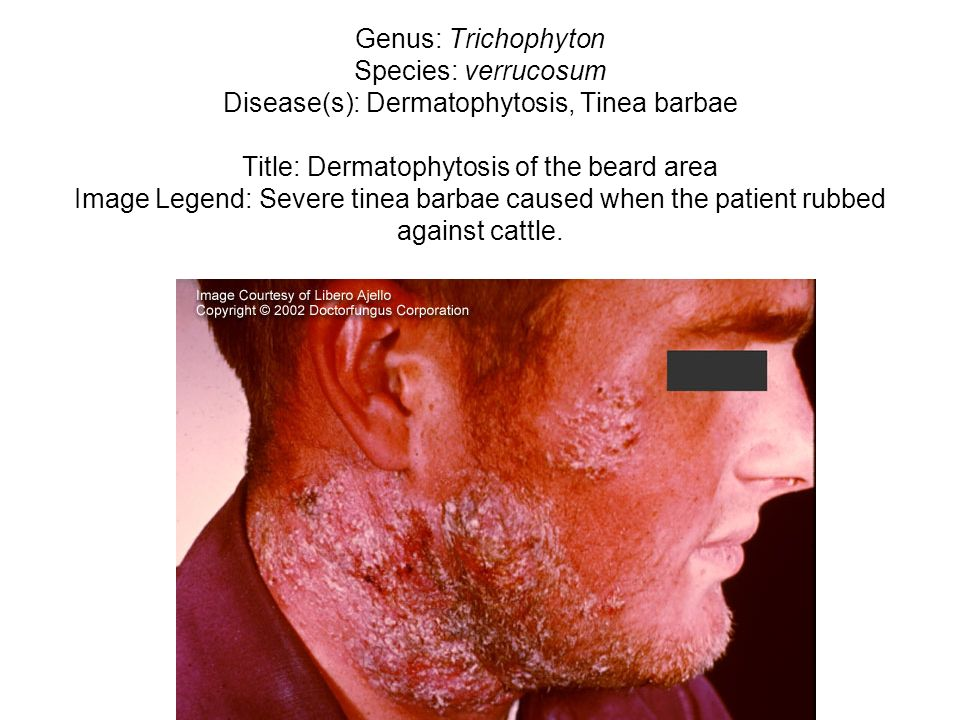 Genus: Trichophyton Species: verrucosum Disease(s): Dermatophytosis, Tinea barbae Title: Dermatophytosis of the beard area Image Legend: Severe tinea
