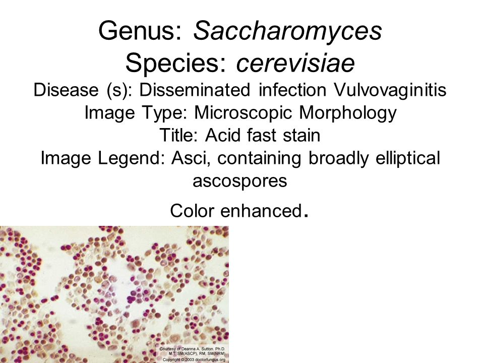 Genus: Saccharomyces Species: cerevisiae Disease (s): Disseminated infection Vulvovaginitis Image Type: Microscopic Morphology Title: Acid fast stain