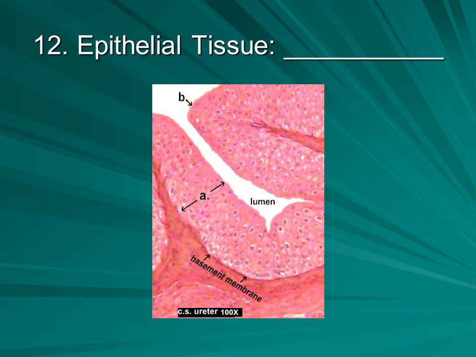11. Epithelial Tissue: ___________