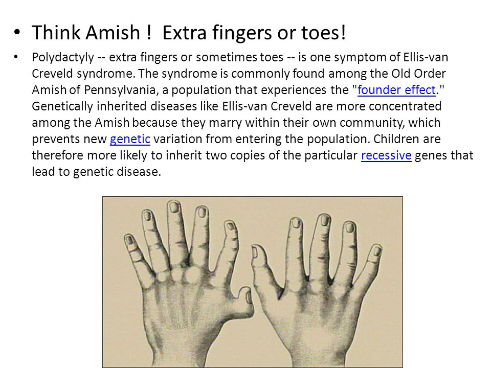 Think Amish ! Extra fingers or toes! Polydactyly -- extra fingers or sometimes toes -- is one symptom of Ellis-van Creveld syndrome. The syndrome is c