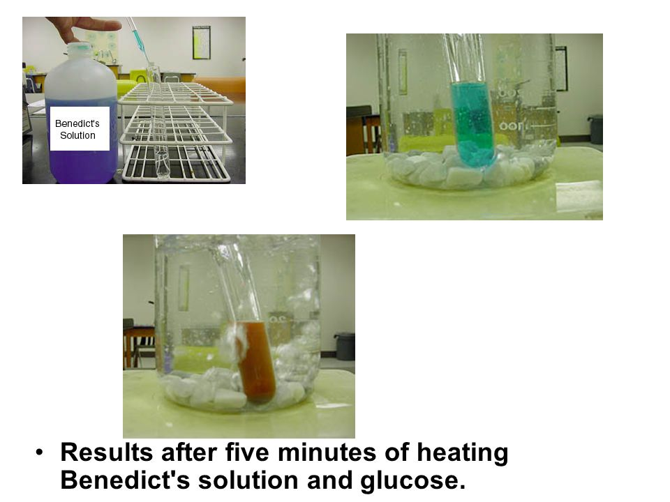 Results after five minutes of heating Benedict's solution and glucose.