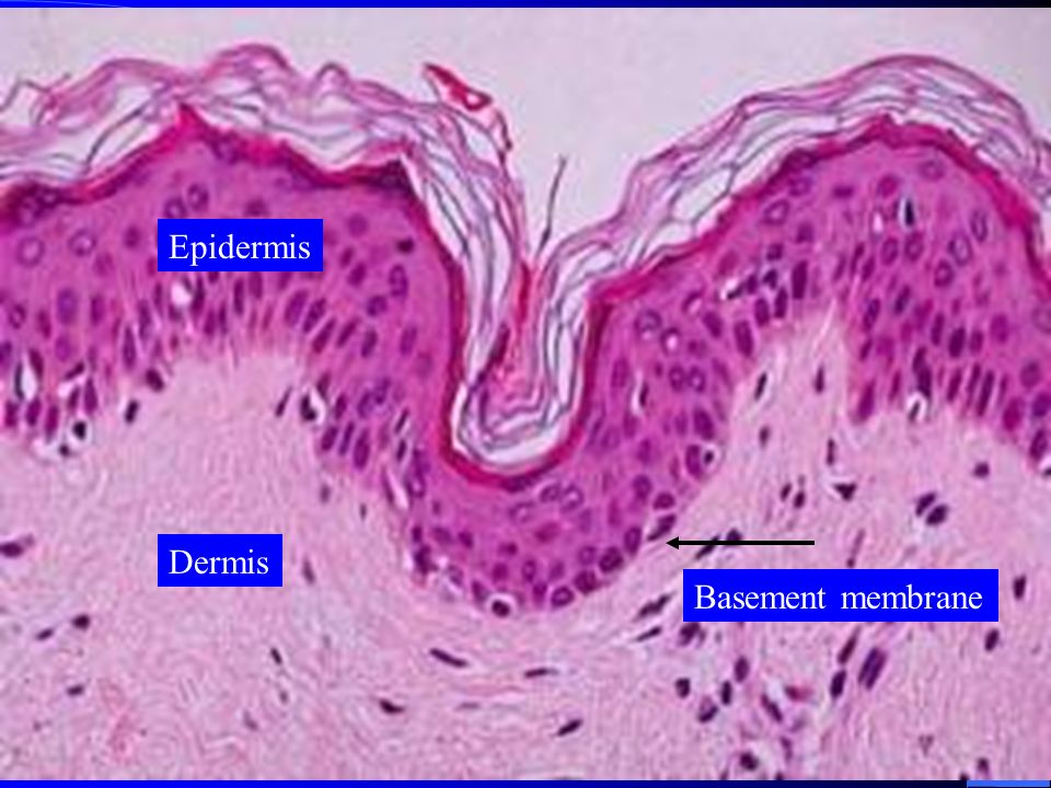 What are the 3 major layers of the skin? Epidermis (epi-upon) – Composed of epithelial tissue (stratified squamous) – Non-vascularized Dermis – underl